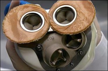 پیوند اولین قلب مصنوعی ترکیبی از گاو و ماشین به بدن یک مرد