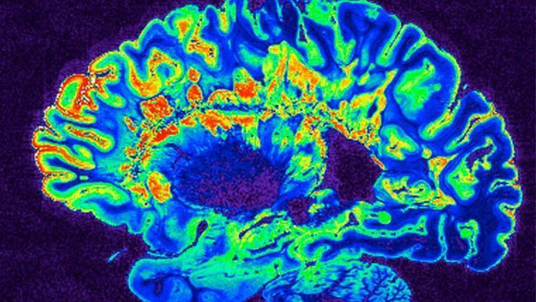 مغز انسان در خواب خاطرات زمان بیداری را بازپخش می نماید