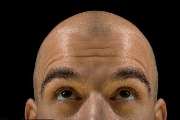 کشف محلولی بر پایه سلول های بنیادی که سبب رشد مجدد مو می گردد