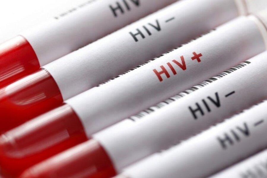 دردسر تازه کرونا برای کشورهای فقیر؛ قربانیان HIV، مالاریا و سل هم زیاد می شوند