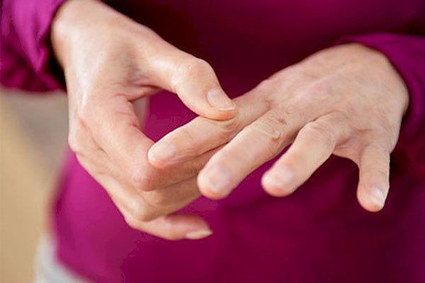 علائم اولیه بیماری روماتیسم مفصلی را بشناسید