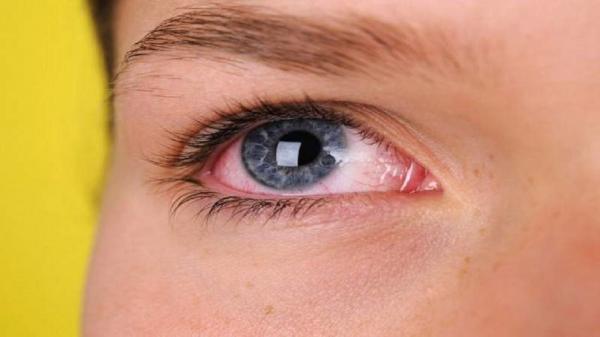عوارض چشمی کرونا از خود کرونا بدتر است